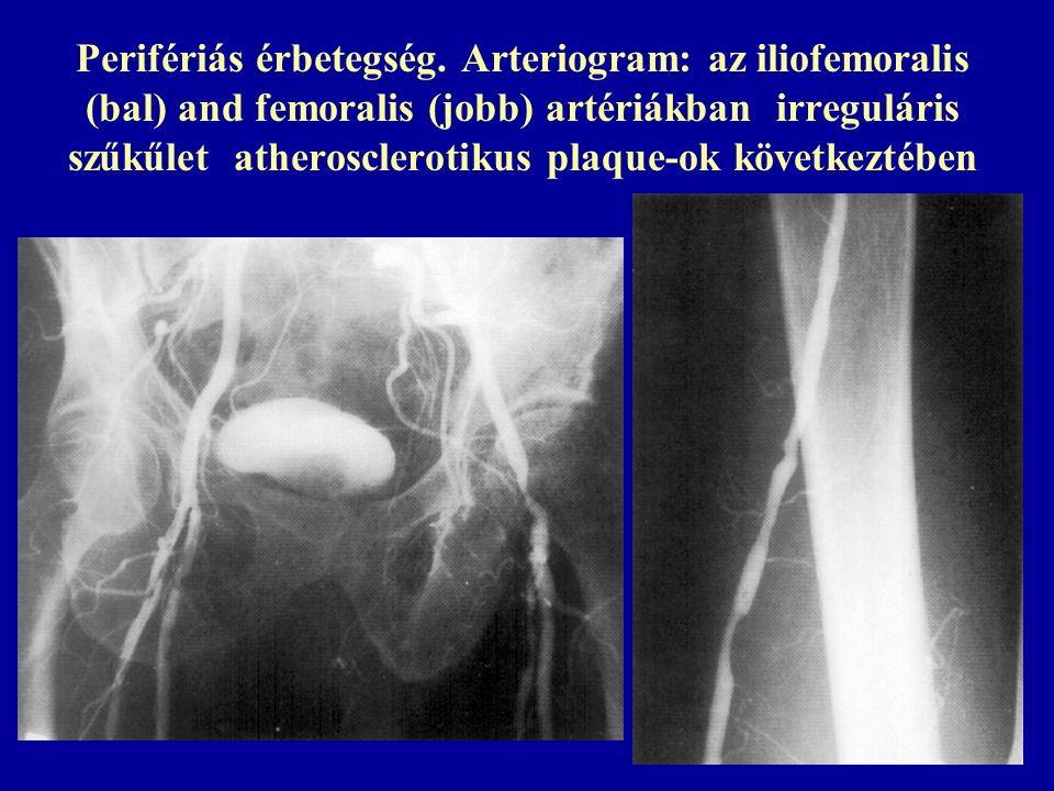 """Az ox-LDL kulcsszerepe az atherogenezisben: kemotaxis (I), migráció-gátlás (II), """"habos sejt, citotoxicitás (IV)"""