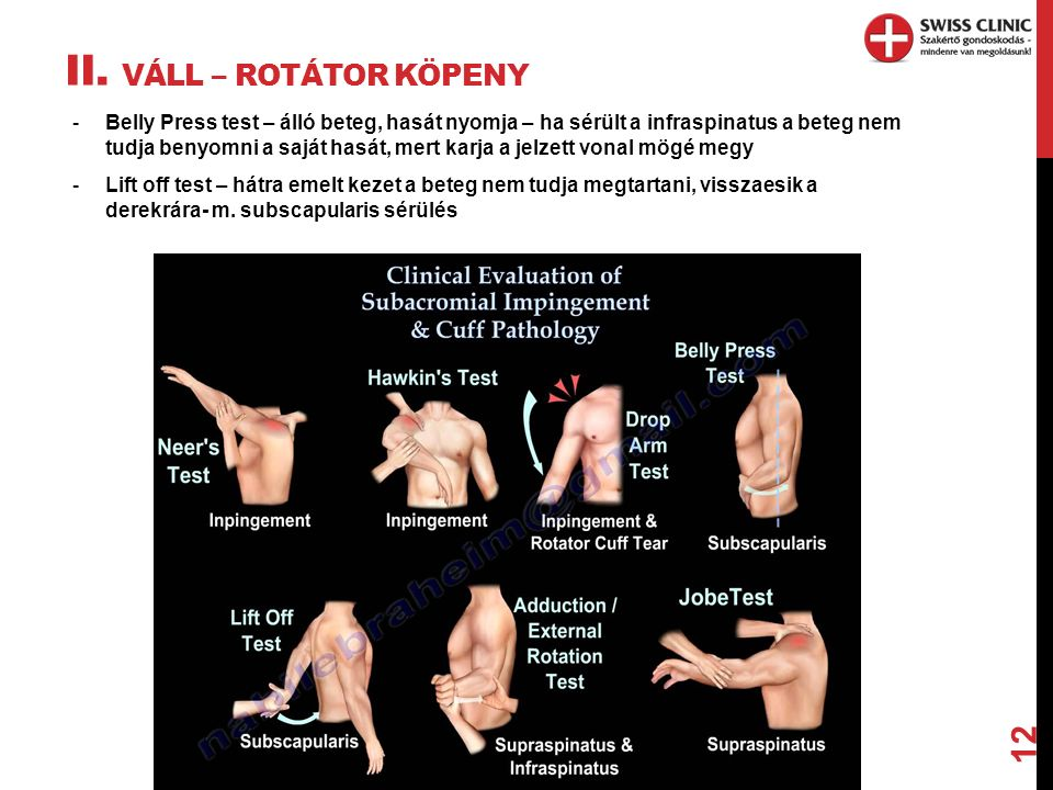 II. VÁLL – ROTÁTOR KÖPENY 12 -Belly Press test – álló beteg, hasát nyomja – ha sérült a infraspinatus a beteg nem tudja benyomni a saját hasát, mert k
