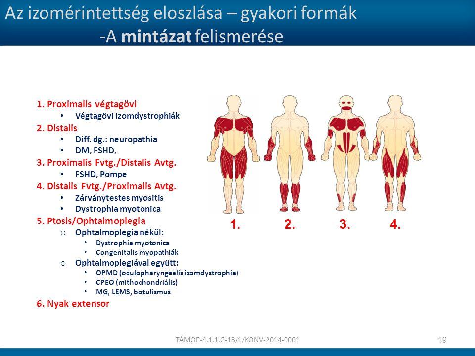 Az izomérintettség eloszlása – gyakori formák -A mintázat felismerése 1. Proximalis végtagövi Végtagövi izomdystrophiák 2. Distalis Diff. dg.: neuropa