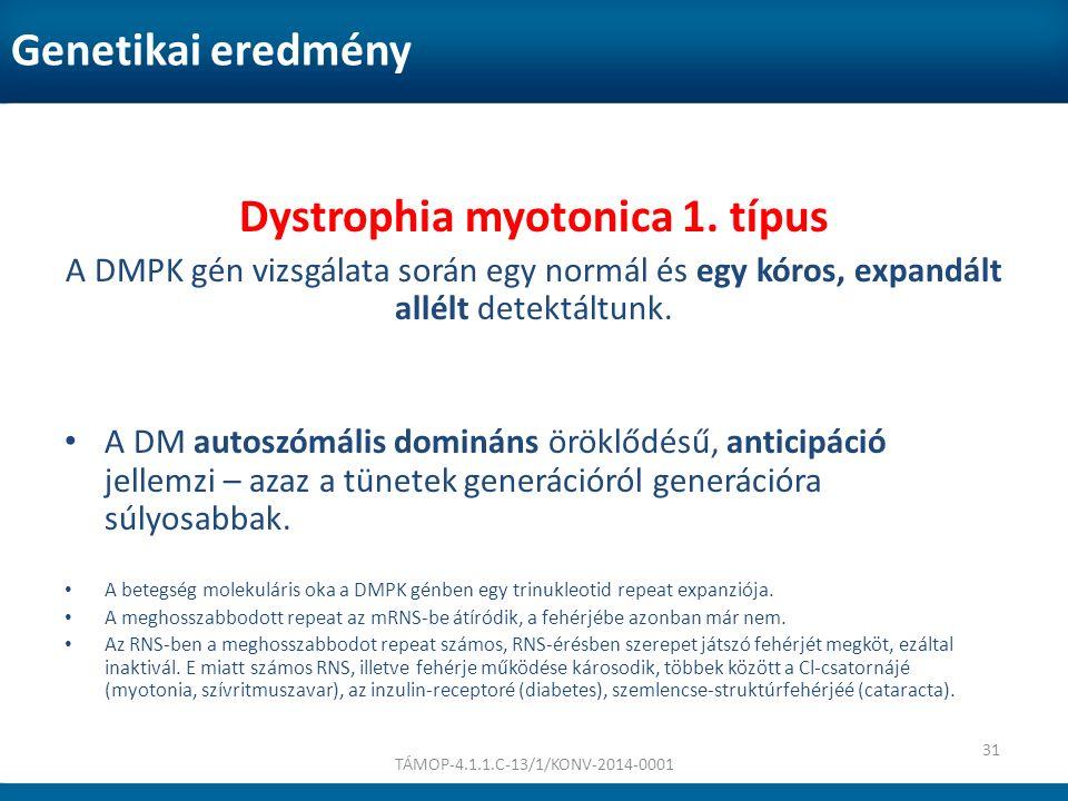 Genetikai eredmény Dystrophia myotonica 1. típus A DMPK gén vizsgálata során egy normál és egy kóros, expandált allélt detektáltunk. A DM autoszómális