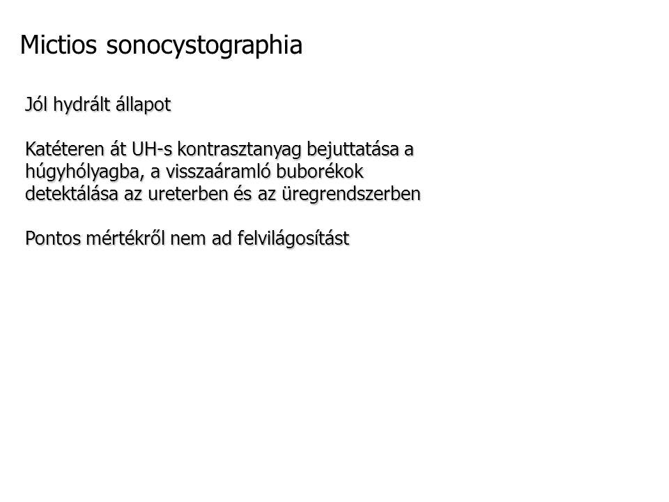 Mictios sonocystographia Jól hydrált állapot Katéteren át UH-s kontrasztanyag bejuttatása a húgyhólyagba, a visszaáramló buborékok detektálása az ureterben és az üregrendszerben Pontos mértékről nem ad felvilágosítást