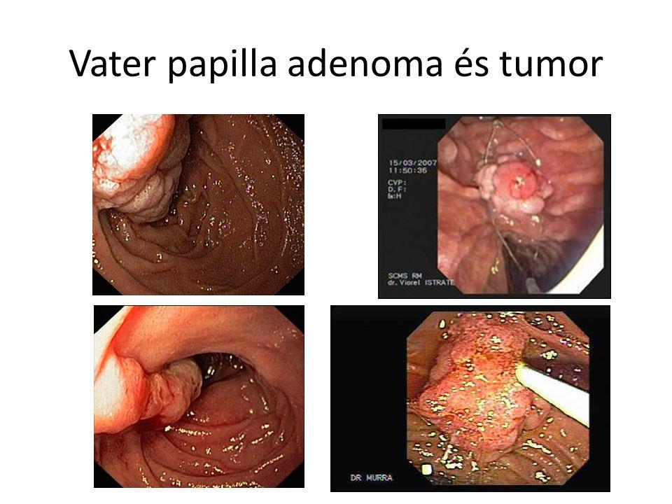 Vater papilla adenoma és tumor