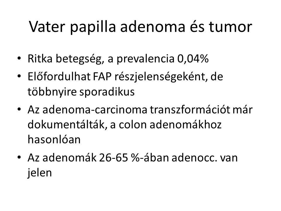 Ritka betegség, a prevalencia 0,04% Előfordulhat FAP részjelenségeként, de többnyire sporadikus Az adenoma-carcinoma transzformációt már dokumentálták, a colon adenomákhoz hasonlóan Az adenomák 26-65 %-ában adenocc.