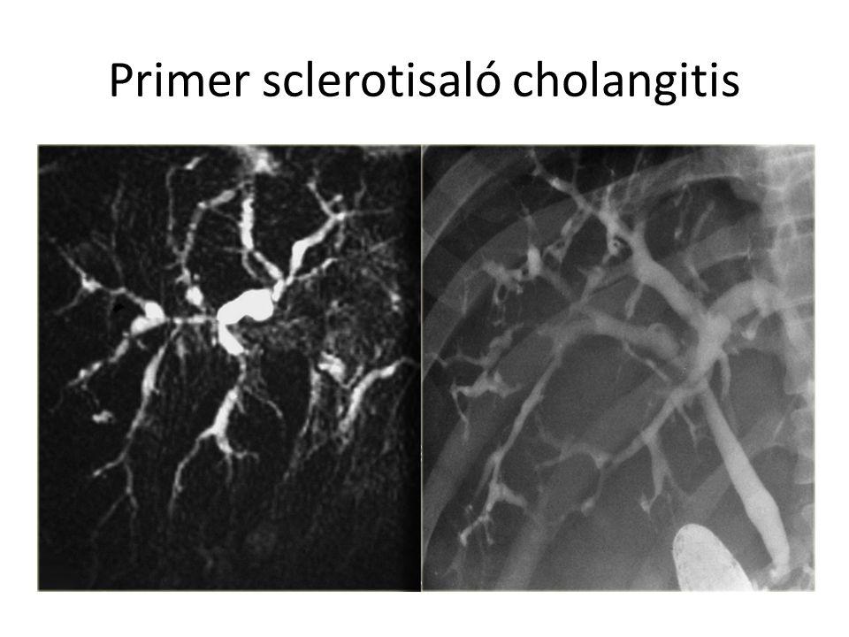 Primer sclerotisaló cholangitis