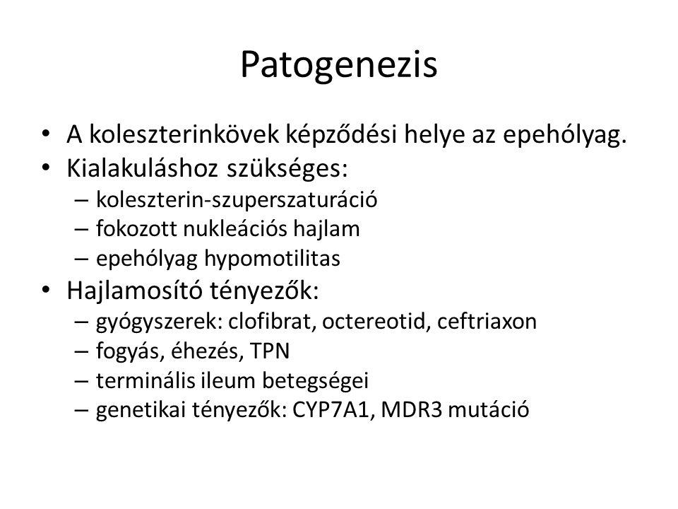 Patogenezis A koleszterinkövek képződési helye az epehólyag.