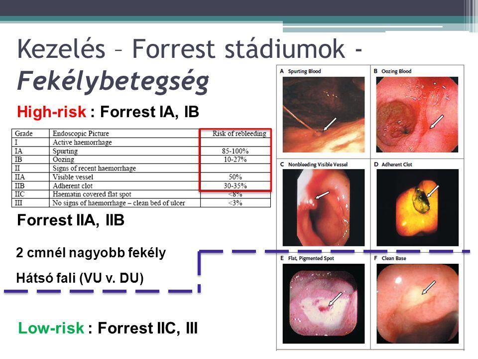 Kezelés – Forrest stádiumok - Fekélybetegség High-risk : Forrest IA, IB 0-11 Low-risk : Forrest IIC, III Forrest IIA, IIB 2 cmnél nagyobb fekély Hátsó fali (VU v.