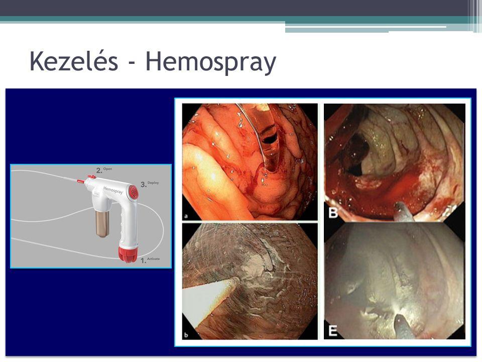 Kezelés - Hemospray