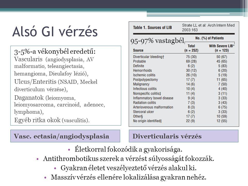 Alsó GI vérzés Diverticularis vérzés Vasc.