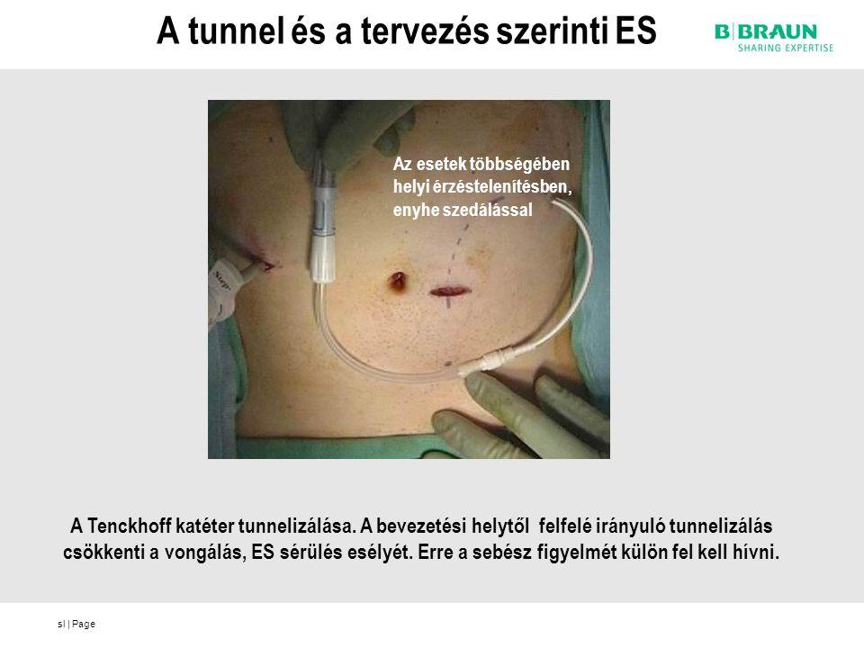 sl | Page A tunnel és a tervezés szerinti ES A Tenckhoff katéter tunnelizálása.