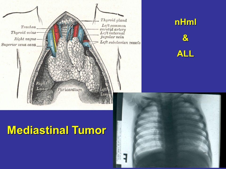 Mediastinal Tumor nHml&ALL