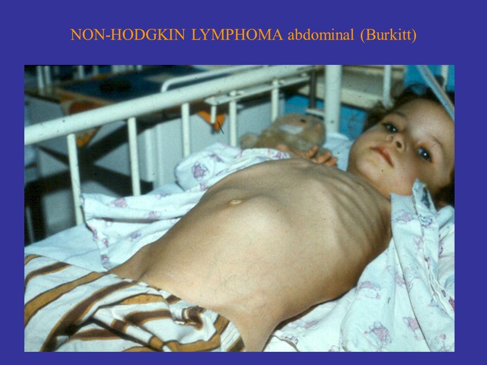 NON-HODGKIN LYMPHOMA abdominal (Burkitt)