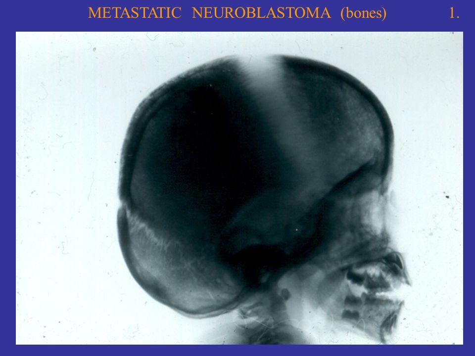 METASTATIC NEUROBLASTOMA (bones)1.