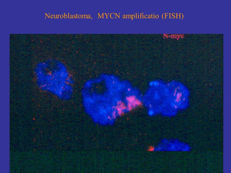 Neuroblastoma, MYCN amplificatio (FISH)
