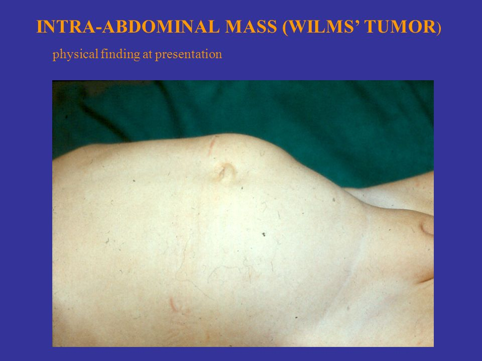 INTRA-ABDOMINAL MASS (WILMS' TUMOR ) physical finding at presentation