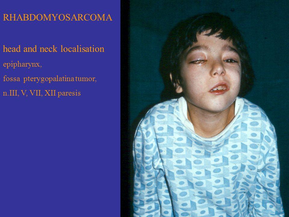 RHABDOMYOSARCOMA head and neck localisation epipharynx, fossa pterygopalatina tumor, n.III, V, VII, XII paresis