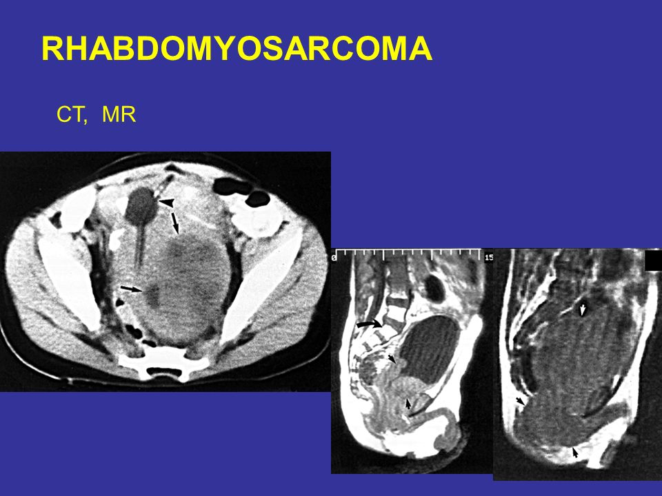 RHABDOMYOSARCOMA CT, MR