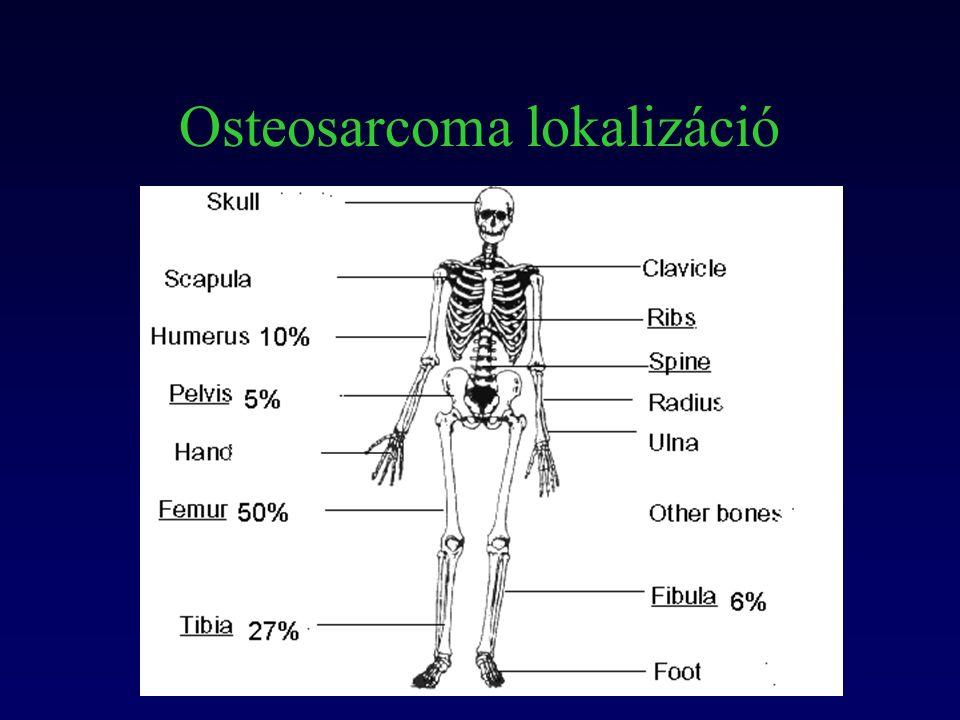 Osteosarcoma lokalizáció