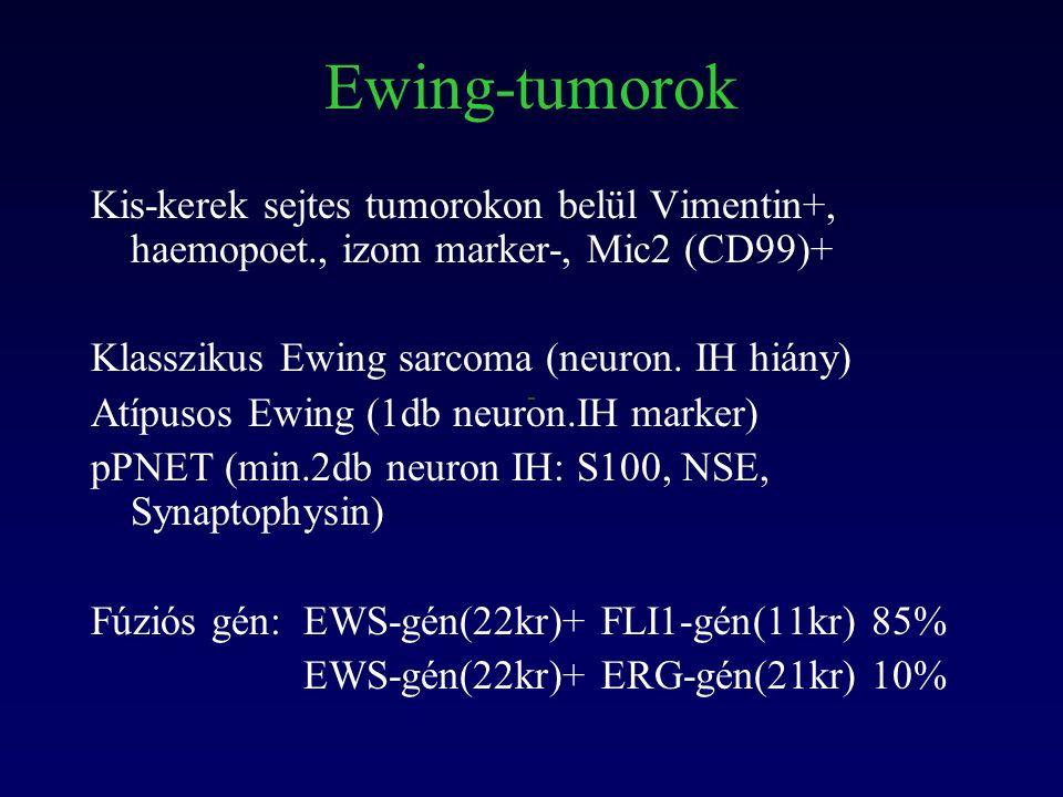 Ewing-tumorok Kis-kerek sejtes tumorokon belül Vimentin+, haemopoet., izom marker-, Mic2 (CD99)+ Klasszikus Ewing sarcoma (neuron.