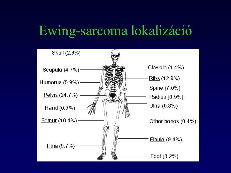 Ewing-sarcoma lokalizáció
