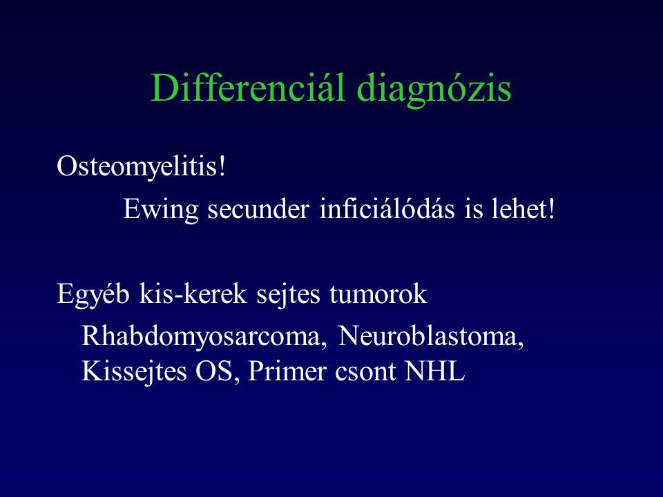Differenciál diagnózis Osteomyelitis. Ewing secunder inficiálódás is lehet.