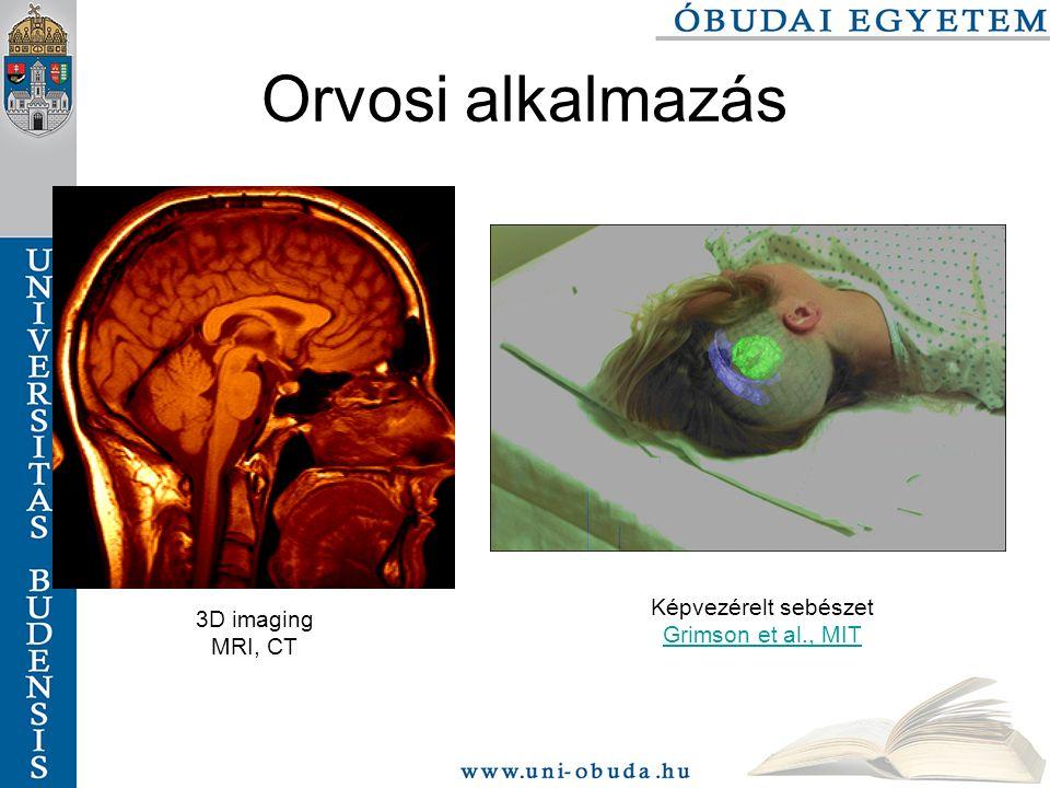 Orvosi alkalmazás Képvezérelt sebészet Grimson et al., MIT 3D imaging MRI, CT