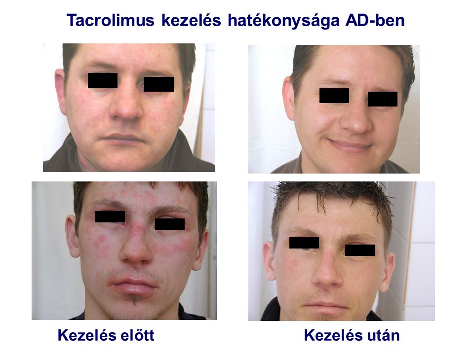 Tacrolimus kezelés hatékonysága AD-ben Kezelés előtt Kezelés után