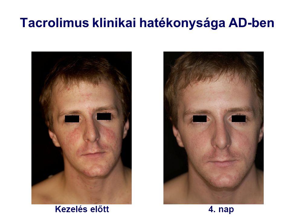 Kezelés előtt4. nap Tacrolimus klinikai hatékonysága AD-ben