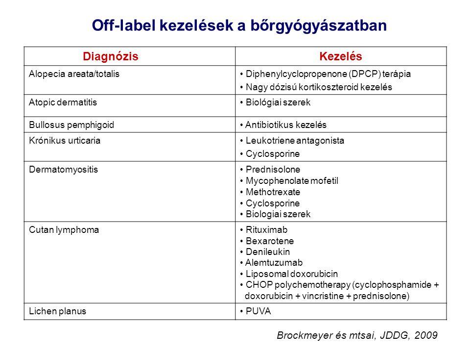 DiagnózisKezelés Alopecia areata/totalis Diphenylcyclopropenone (DPCP) terápia Nagy dózisú kortikoszteroid kezelés Atopic dermatitis Biológiai szerek Bullosus pemphigoid Antibiotikus kezelés Krónikus urticaria Leukotriene antagonista Cyclosporine Dermatomyositis Prednisolone Mycophenolate mofetil Methotrexate Cyclosporine Biologiai szerek Cutan lymphoma Rituximab Bexarotene Denileukin Alemtuzumab Liposomal doxorubicin CHOP polychemotherapy (cyclophosphamide + doxorubicin + vincristine + prednisolone) Lichen planus PUVA Off-label kezelések a bőrgyógyászatban Brockmeyer és mtsai, JDDG, 2009