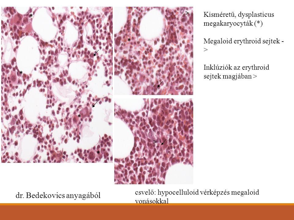 Kisméretű, dysplasticus megakaryocyták (*) Megaloid erythroid sejtek - > Inklúziók az erythroid sejtek magjában > * * * * * > > dr.