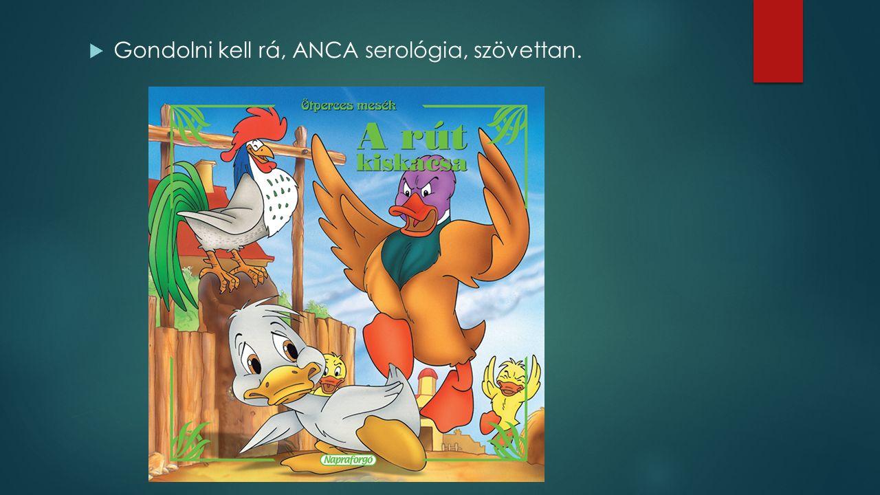  Gondolni kell rá, ANCA serológia, szövettan.