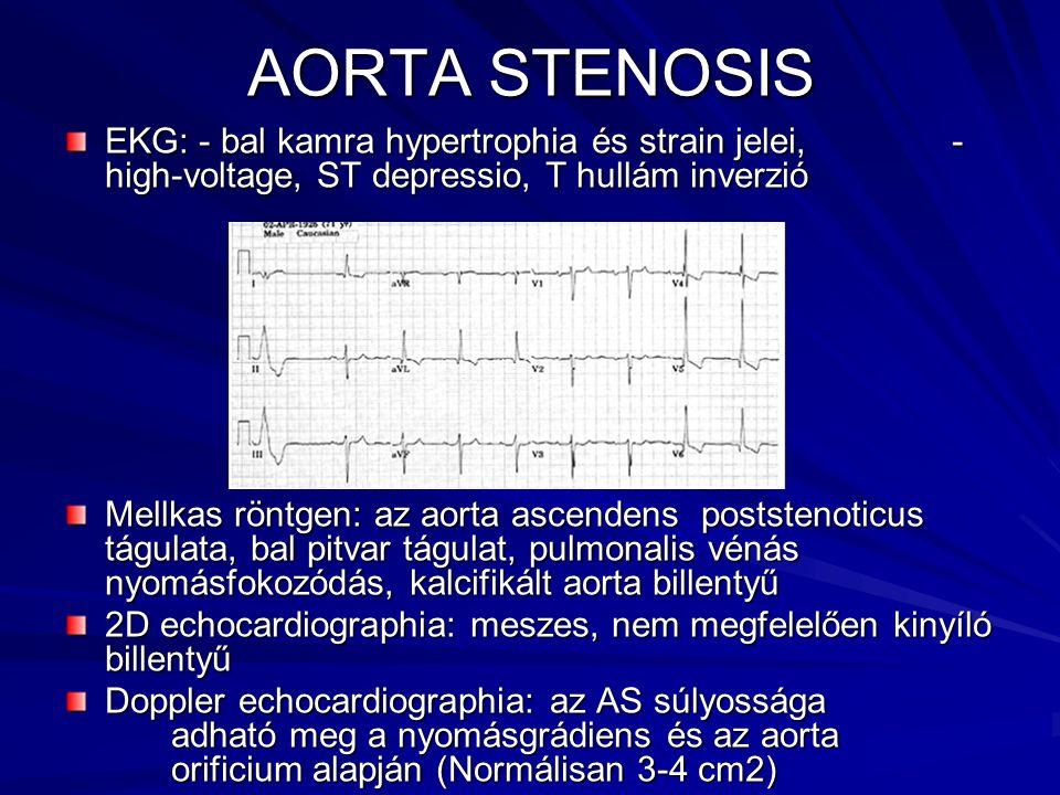 AORTA STENOSIS EKG: - bal kamra hypertrophia és strain jelei, - high-voltage, ST depressio, T hullám inverzió Mellkas röntgen: az aorta ascendens post