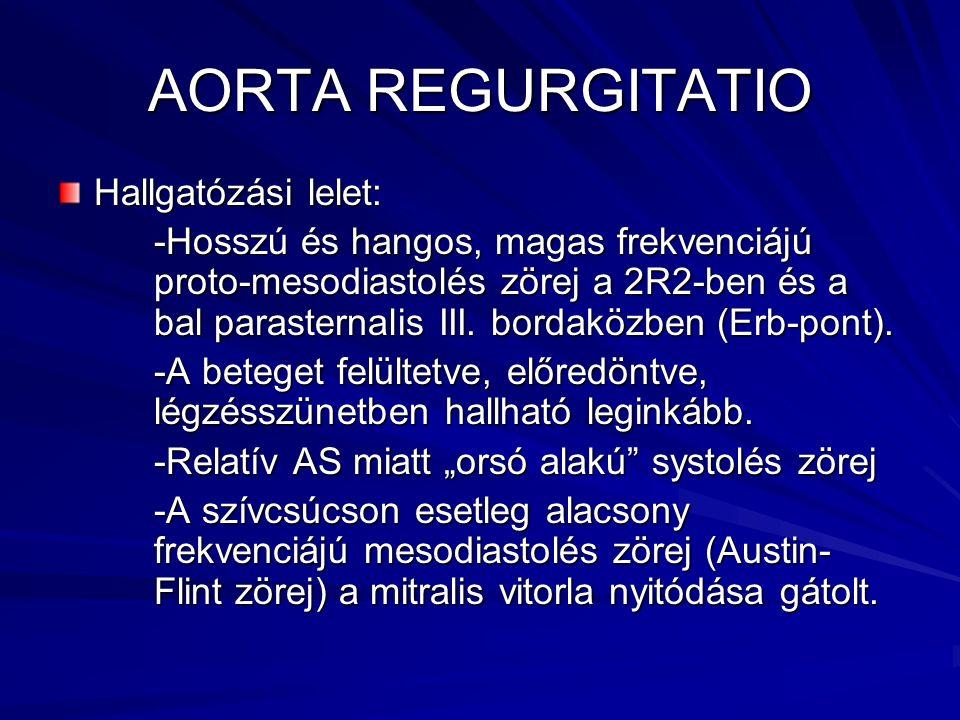 AORTA REGURGITATIO Hallgatózási lelet: -Hosszú és hangos, magas frekvenciájú proto-mesodiastolés zörej a 2R2-ben és a bal parasternalis III. bordaközb