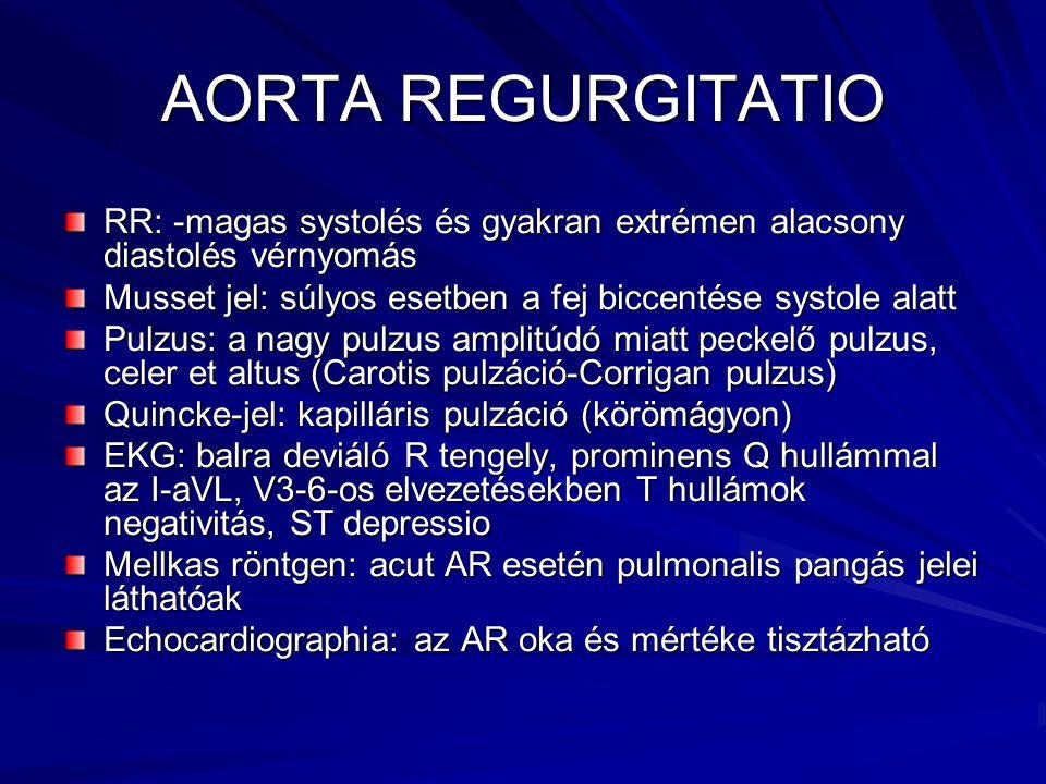 AORTA REGURGITATIO RR: -magas systolés és gyakran extrémen alacsony diastolés vérnyomás Musset jel: súlyos esetben a fej biccentése systole alatt Pulz