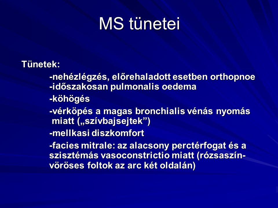 MS tünetei Tünetek: -nehézlégzés, előrehaladott esetben orthopnoe -időszakosan pulmonalis oedema -köhögés -vérköpés a magas bronchialis vénás nyomás m