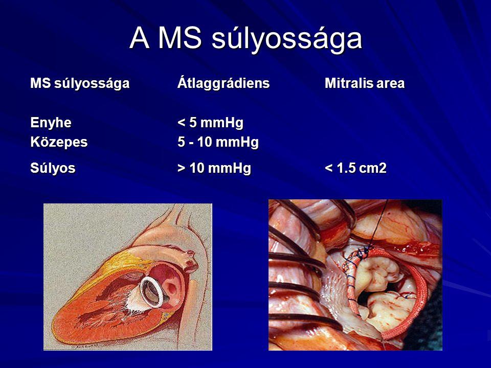 A MS súlyossága MS súlyosságaÁtlaggrádiensMitralis area Enyhe< 5 mmHg Közepes5 - 10 mmHg Súlyos> 10 mmHg 10 mmHg < 1.5 cm2