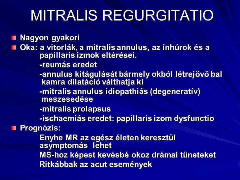 MITRALIS REGURGITATIO Nagyon gyakori Oka: a vitorlák, a mitralis annulus, az ínhúrok és a papillaris izmok eltérései. -reumás eredet -reumás eredet -a