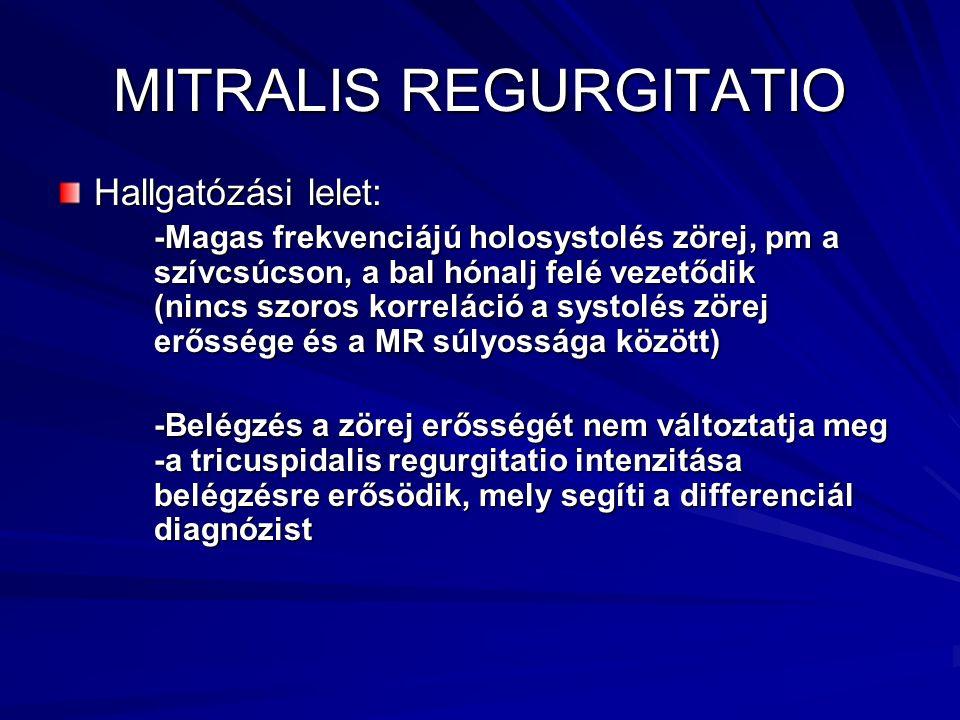 MITRALIS REGURGITATIO Hallgatózási lelet: -Magas frekvenciájú holosystolés zörej, pm a szívcsúcson, a bal hónalj felé vezetődik (nincs szoros korrelác