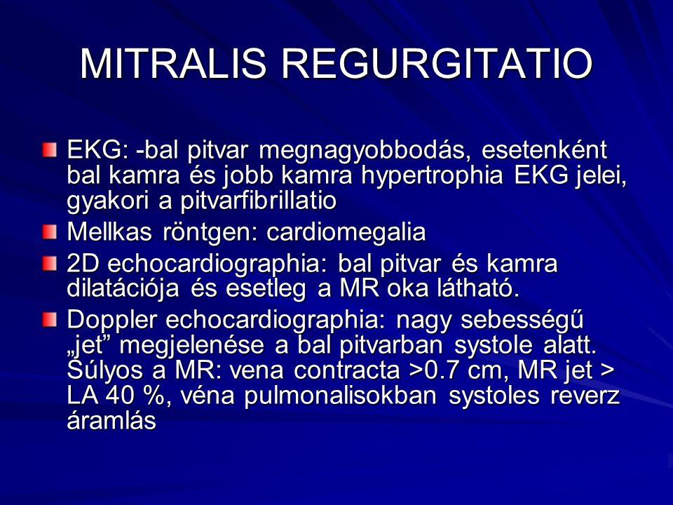 MITRALIS REGURGITATIO EKG: -bal pitvar megnagyobbodás, esetenként bal kamra és jobb kamra hypertrophia EKG jelei, gyakori a pitvarfibrillatio Mellkas