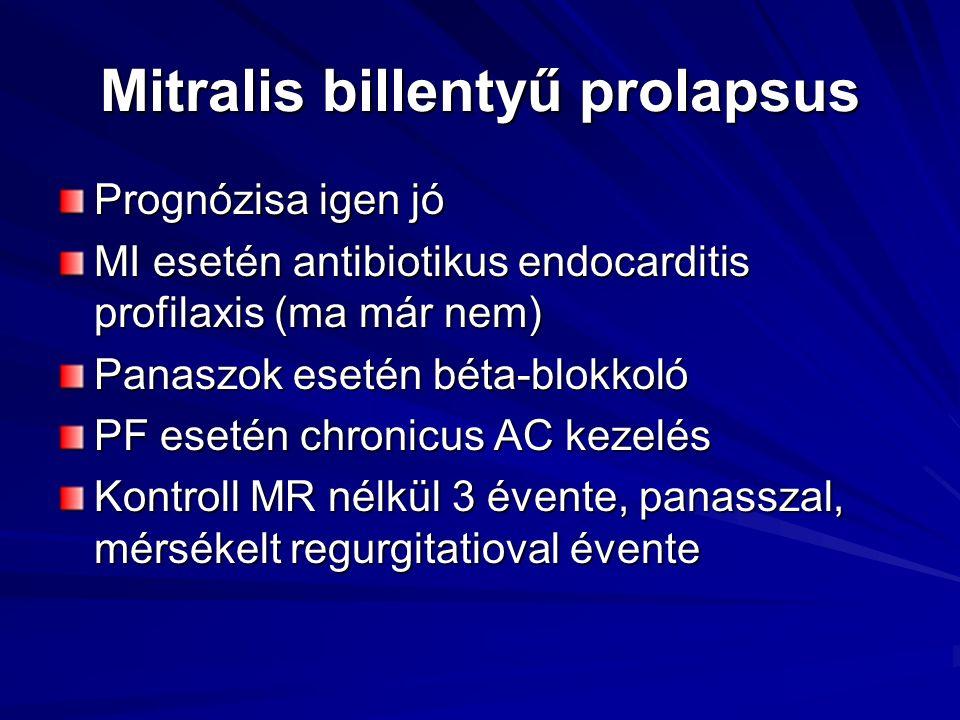 Mitralis billentyű prolapsus Prognózisa igen jó MI esetén antibiotikus endocarditis profilaxis (ma már nem) Panaszok esetén béta-blokkoló PF esetén ch