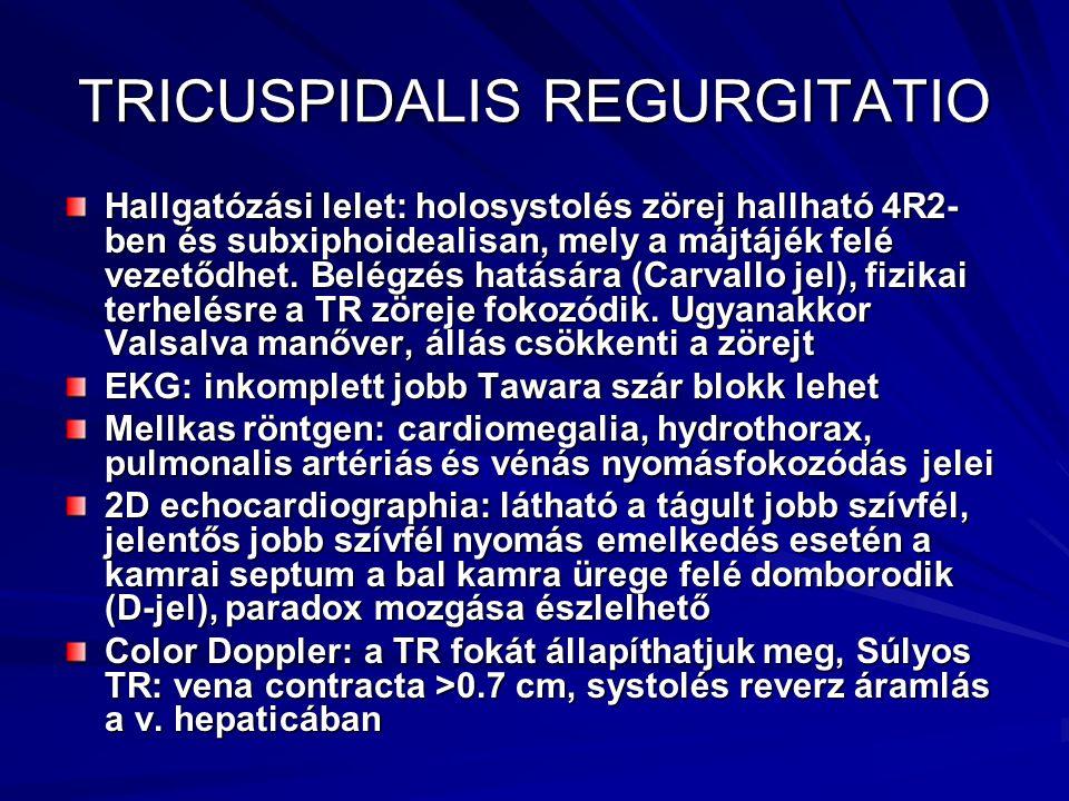 TRICUSPIDALIS REGURGITATIO Hallgatózási lelet: holosystolés zörej hallható 4R2- ben és subxiphoidealisan, mely a májtájék felé vezetődhet. Belégzés ha