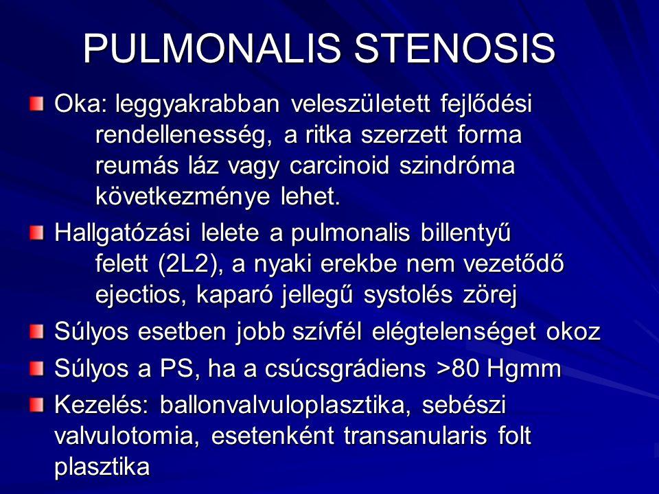 PULMONALIS STENOSIS Oka: leggyakrabban veleszületett fejlődési rendellenesség, a ritka szerzett forma reumás láz vagy carcinoid szindróma következmény