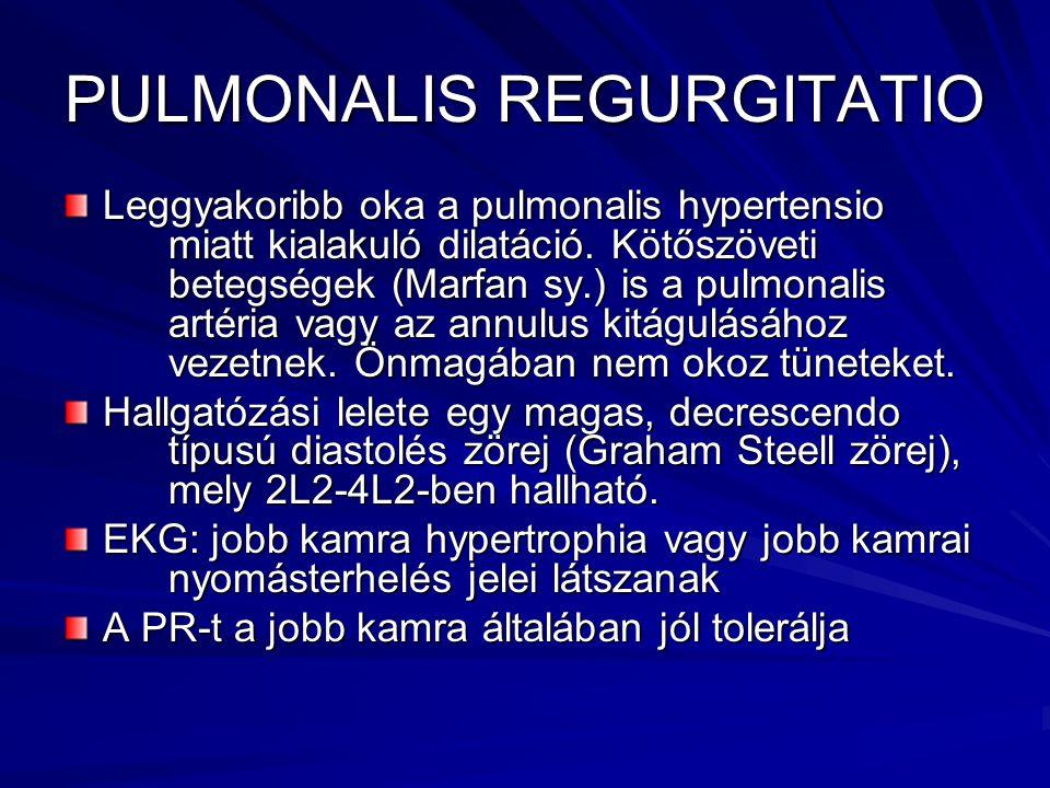 PULMONALIS REGURGITATIO Leggyakoribb oka a pulmonalis hypertensio miatt kialakuló dilatáció. Kötőszöveti betegségek (Marfan sy.) is a pulmonalis artér