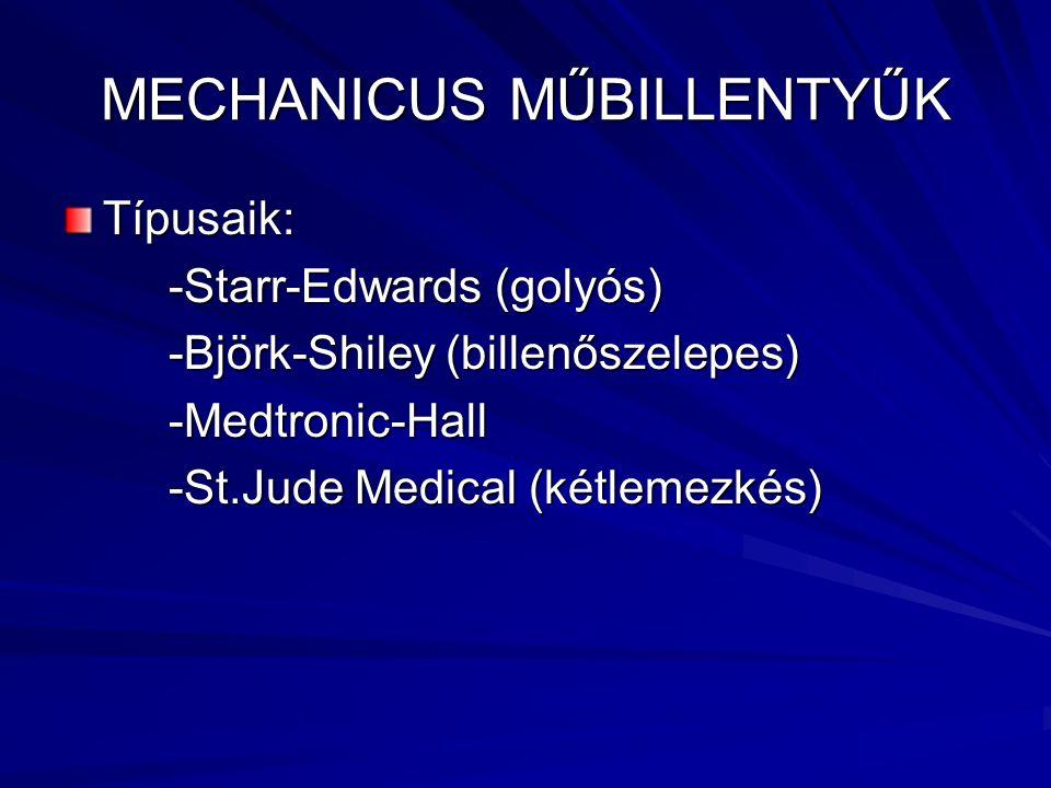 MECHANICUS MŰBILLENTYŰK Típusaik: -Starr-Edwards (golyós) -Björk-Shiley (billenőszelepes) -Medtronic-Hall -St.Jude Medical (kétlemezkés)
