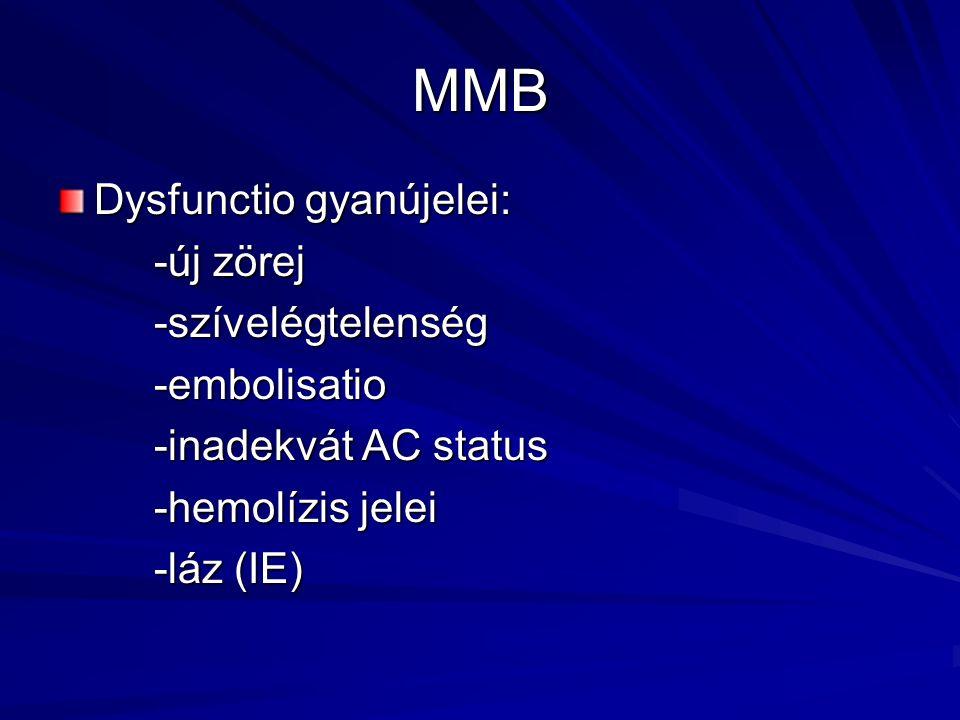 MMB Dysfunctio gyanújelei: -új zörej -szívelégtelenség-embolisatio -inadekvát AC status -hemolízis jelei -láz (IE)