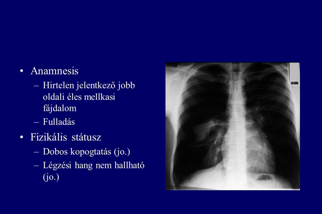 Anamnesis –Hirtelen jelentkező jobb oldali éles mellkasi fájdalom –Fulladás Fizikális státusz –Dobos kopogtatás (jo.) –Légzési hang nem hallható (jo.)