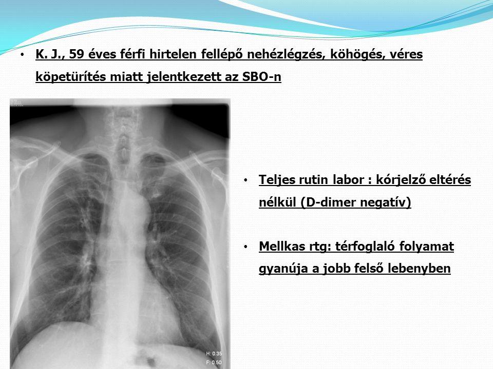 K. J., 59 éves férfi hirtelen fellépő nehézlégzés, köhögés, véres köpetürítés miatt jelentkezett az SBO-n Teljes rutin labor : kórjelző eltérés nélkül