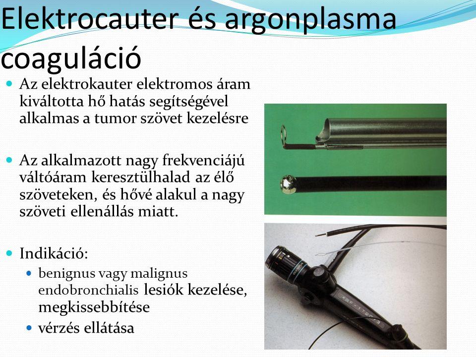 Elektrocauter és argonplasma coaguláció Az elektrokauter elektromos áram kiváltotta hő hatás segítségével alkalmas a tumor szövet kezelésre Az alkalmazott nagy frekvenciájú váltóáram keresztülhalad az élő szöveteken, és hővé alakul a nagy szöveti ellenállás miatt.
