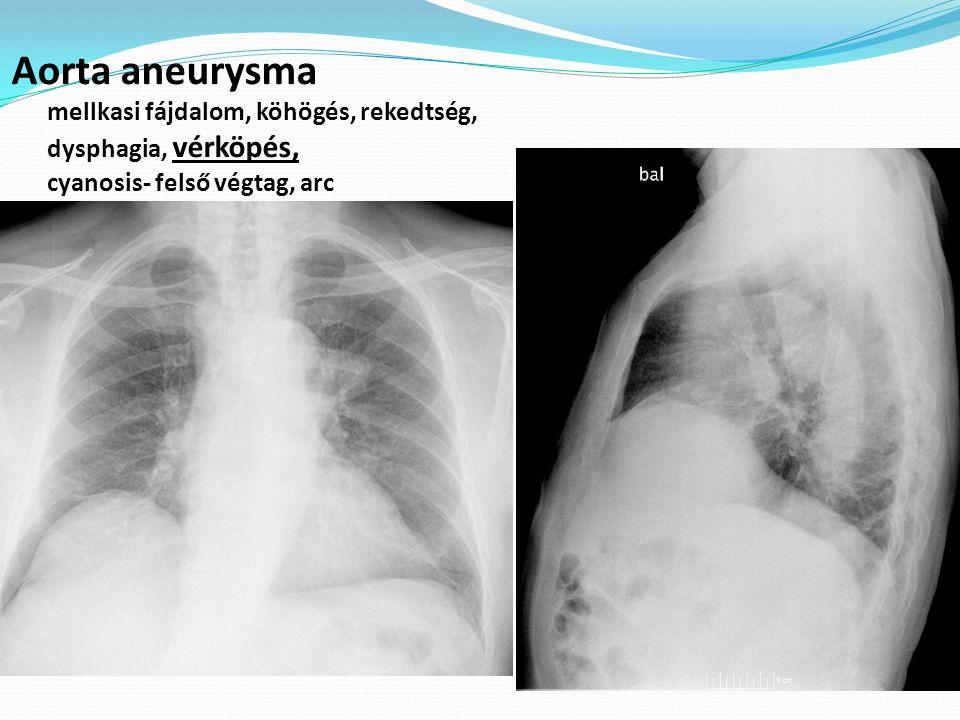 Aorta aneurysma mellkasi fájdalom, köhögés, rekedtség, dysphagia, vérköpés, cyanosis- felső végtag, arc