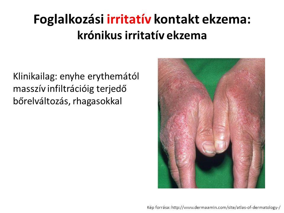Foglalkozási irritatív kontakt ekzema: krónikus irritatív ekzema Kép forrása: http://www.dermaamin.com/site/atlas-of-dermatology-/ Klinikailag: enyhe erythemától masszív infiltrációig terjedő bőrelváltozás, rhagasokkal