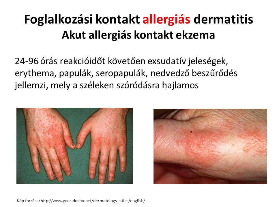 Foglalkozási kontakt allergiás dermatitis Akut allergiás kontakt ekzema 24-96 órás reakcióidőt követően exsudatív jeleségek, erythema, papulák, seropapulák, nedvedző beszűrődés jellemzi, mely a széleken szóródásra hajlamos Kép forrása: http://www.your-doctor.net/dermatology_atlas/english/